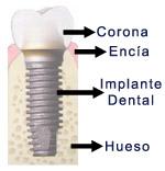 img-implantes-dentales