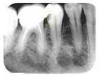 Radiografia1
