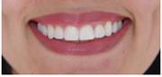 2. Acercamiento de la sonrisa