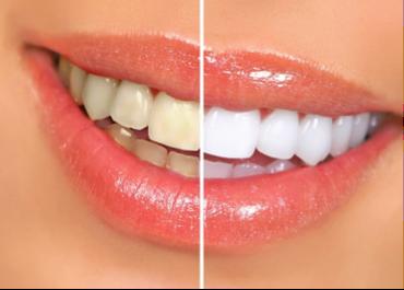 Estetica Dental Costa Rica