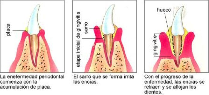 periodoncia Costa Rica