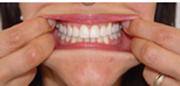 3. Vista frontal de los dientes